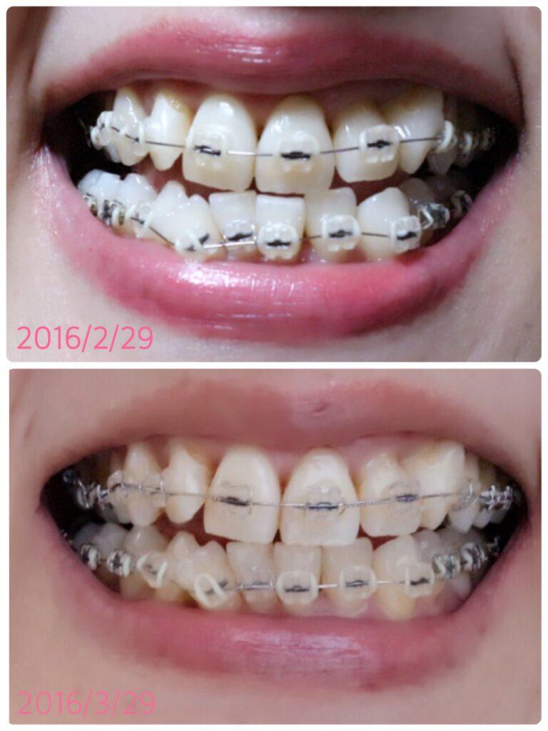 24D4D011-39D2-4920-8FF5-AEC5557725E5 2